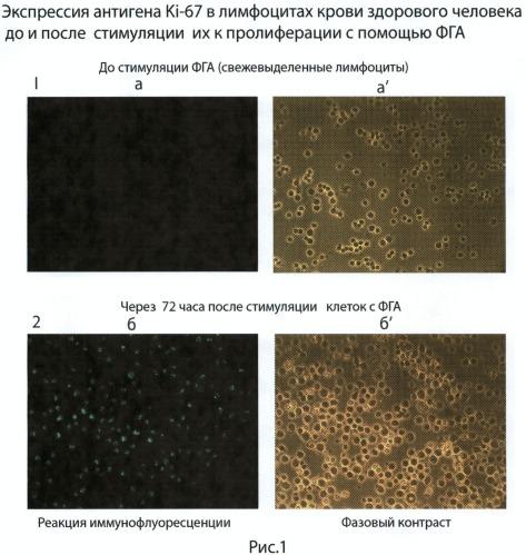 Иммуноцитохимический способ оценки реакции бласттрансформации лимфоцитов (рбтл) при стимуляции их фитогемагглютинином (фга)