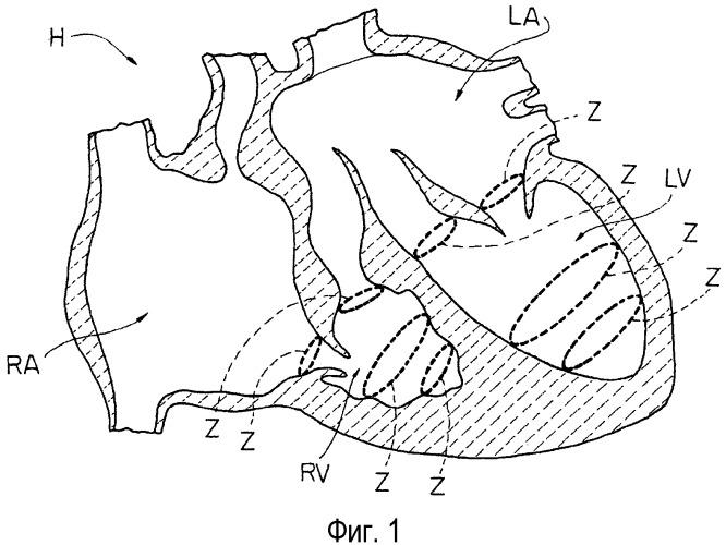 Интракардиальное устройство для восстановления функциональной упругости кардиоструктур, инструмент для удерживания интракардиального устройства, а также способ имплантирования интракардиального устройства в сердце