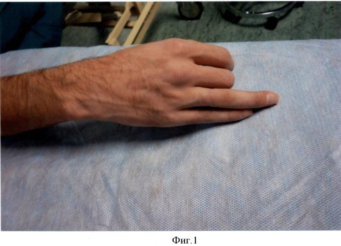 Способ сохранения сухожильного канала пальца при гнойном осложнении на первом этапе тендопластики
