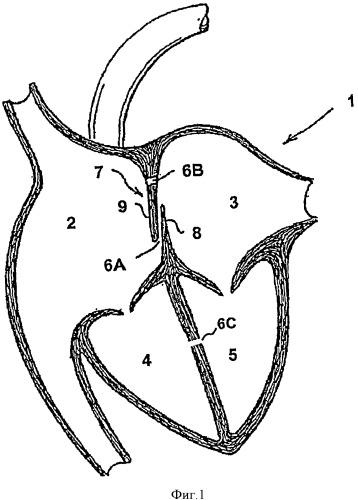 Кардиальный окклюдер