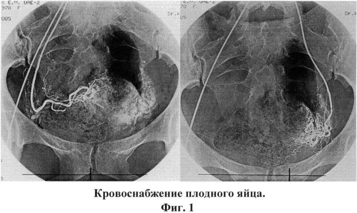Способ комплексного лечения шеечной беременности