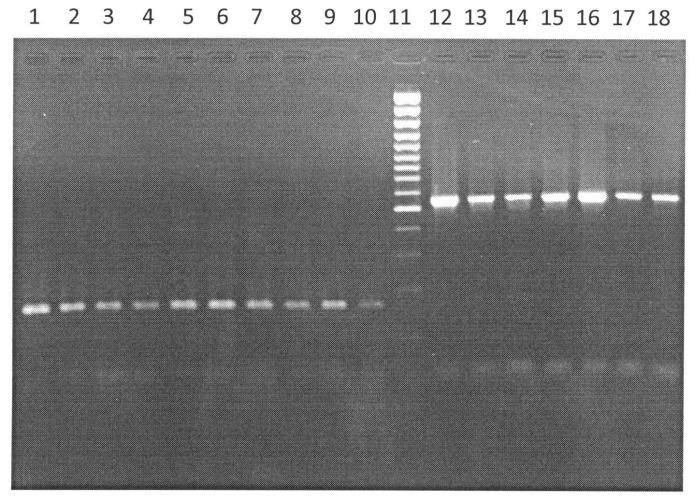 Способ дифференциации возбудителя сибирской язвы от других близкородственных видов рода bacillus на основе определения различий в структуре хромосомных генов