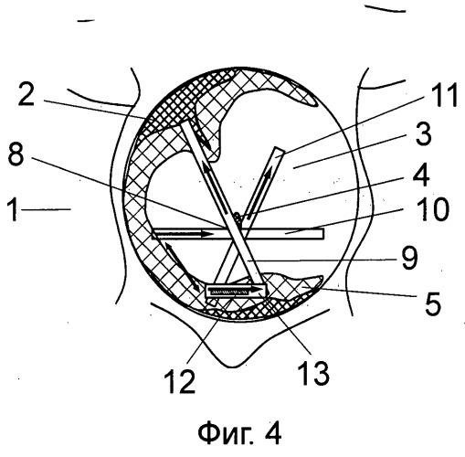 Способ коррекции грыжевого дефекта передней стенки живота и способ формирования корригирующей клеевой повязки на передней стенке живота