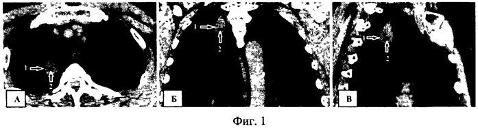 Способ оценки внутренней структуры шаровидных образований легких