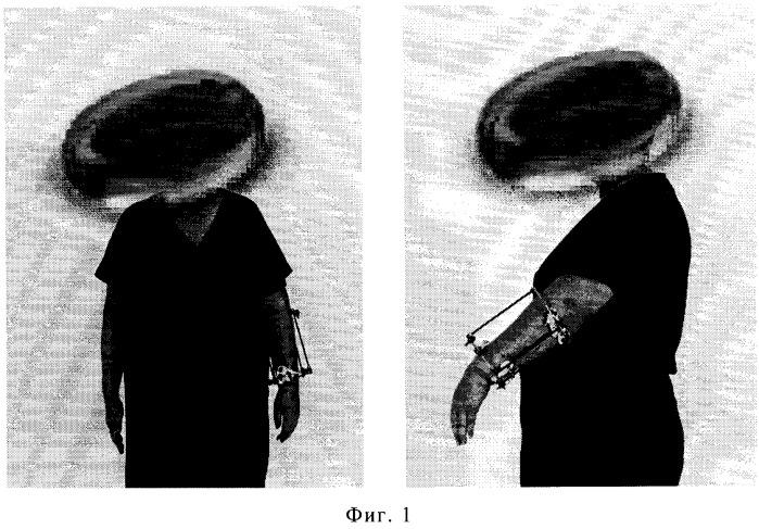 Способ лечения повреждений нервных стволов верхних и нижних конечностей в условиях остеосинтеза