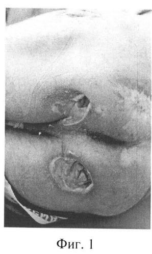 Способ лечения пролежней у больных с ортопедической патологией в ходе ее устранения с применением аппаратов внешней фиксации