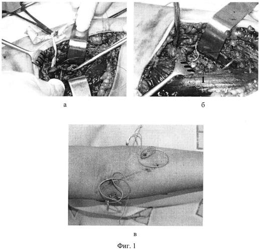 Способ посттравматической реконструкции поврежденного периферического нерва
