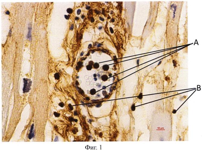 Способ патоморфологического определения давности наступления инфаркта миокарда