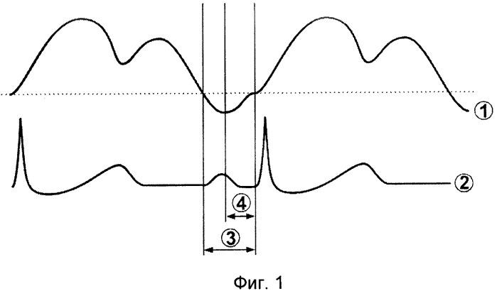 Способ диагностики нарушения сократимости муфт легочных вен после процедуры радиочастотной аблации