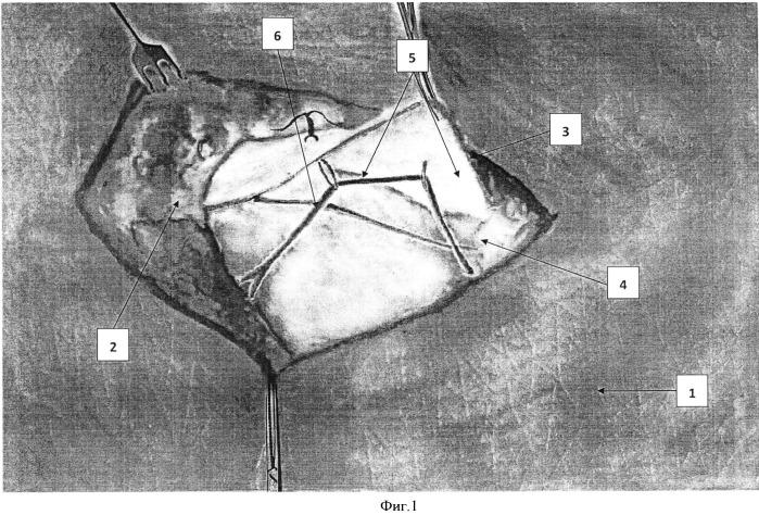 Способ временной транслокации паховых нервов при радикальных операциях паховых грыж