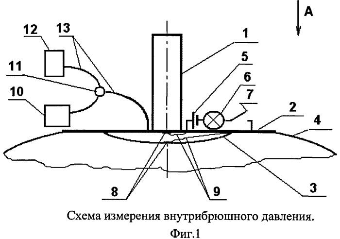 Способ измерения внутрибрюшного давления