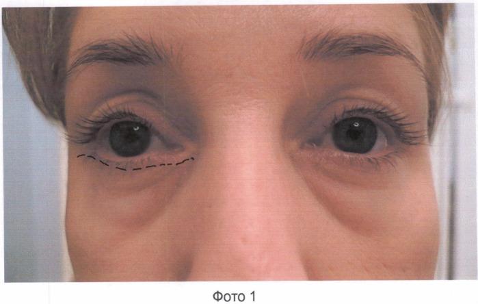 Способ пластики глазных век