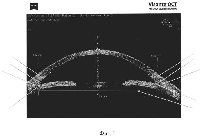 Способ определения диаметра цилиарной борозды методом оптической когерентной томографии переднего отрезка глаза