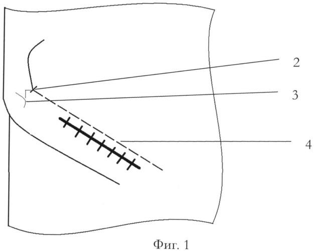Способ обезболивания после грыжесечения паховым доступом при паховых грыжах