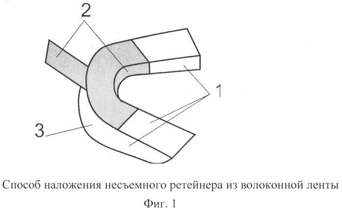 Способ наложения несъемного ретейнера из волоконной ленты