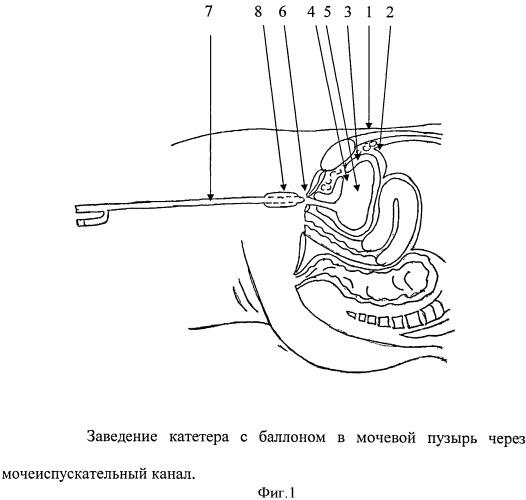 Способ надлобковой цистостомии при внебрюшинном нарушении целостности стенок мочевого пузыря