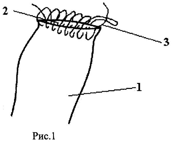 Способ ушивания культи двенадцатиперстной кишки