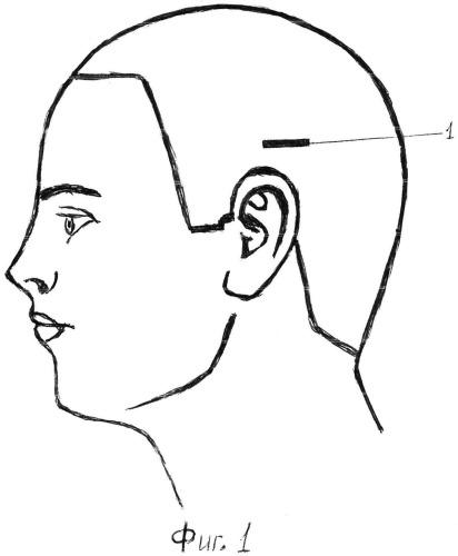Способ лечения эпилепсии