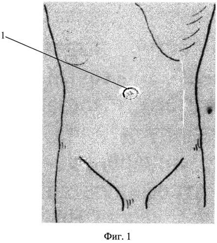 Способ видеоассистированной аппендэктомии через единый лапароскопический доступ