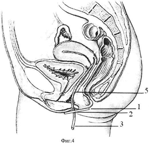 Способ ранней диагностики несостоятельности мышц тазового дна