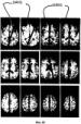 Система и способ для автоматического планирования видов в объемных изображениях мозга
