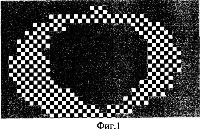 Способ тренировки глаз для улучшения остроты зрения при близорукости