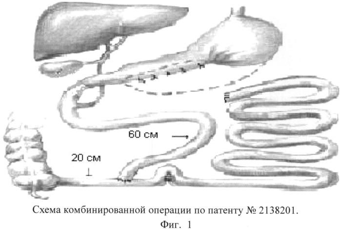 Способ комбинированного хирургического лечения морбидного ожирения с профилактикой байпас-энтерита
