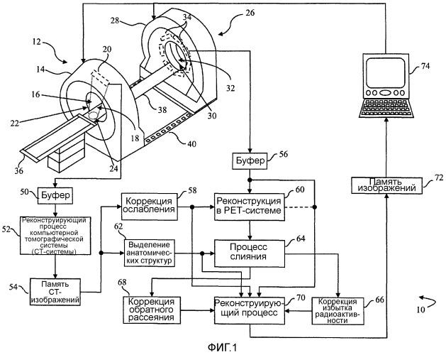 Расширение на основе модели поля обзора при радионуклидной визуализации