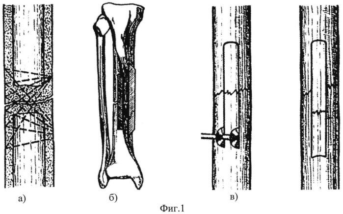 Способ костной пластики ложных суставов
