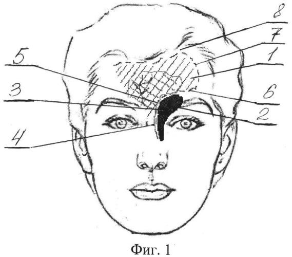 Способ устранения сквозного дефекта носо-лобно-орбитальной области