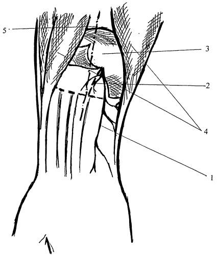 Способ лечения невропатии глубокой ветви лучевого нерва