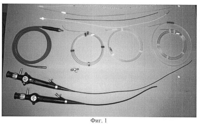Способ диагностики и определения тактики хирургического лечения стриктур мочеточника туберкулезного и неспецифического генеза