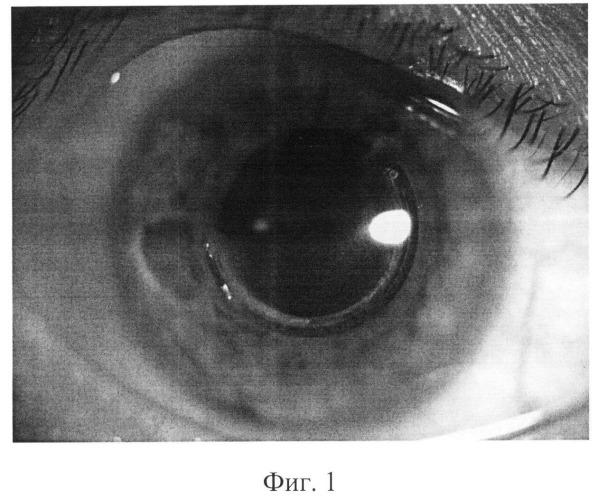 Способ лечения экструзии сегментов после имплантации интрастромальных роговичных сегментов при кератэктазиях