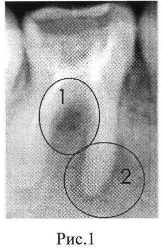 Способ лечения деструктивных форм хронических верхушечных периодонтитов