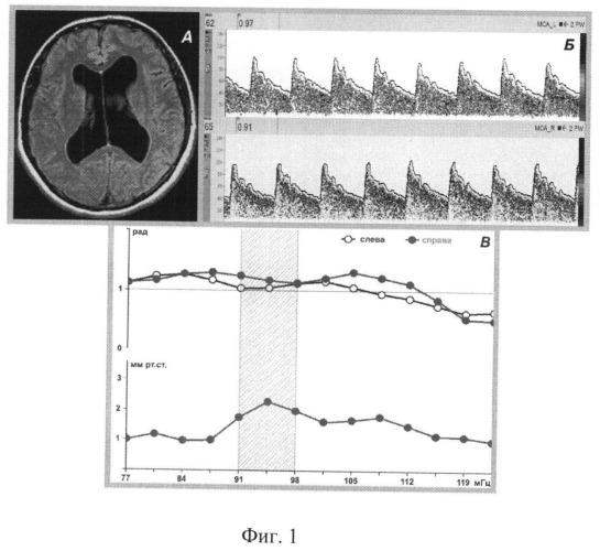 Способ определения показания к хирургическому лечению нормотензивной гидроцефалии