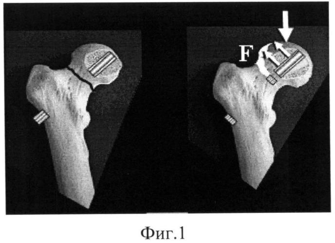 Способ остеосинтеза переломов шейки бедра и устройство для его осуществления