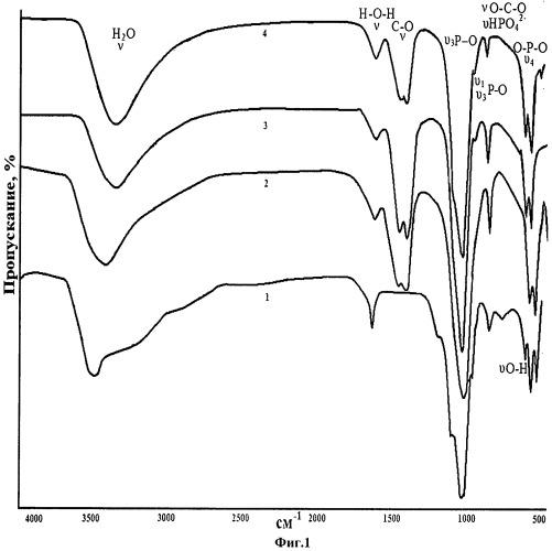Способ получения карбонатгидроксилапатита из модельного раствора синовиальной жидкости человека