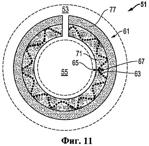 Узел для подкрепляющего кольца и способ его изготолвения