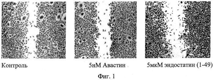 Фармацевтическая антиангиогенная композиция для лечения заболеваний глаз