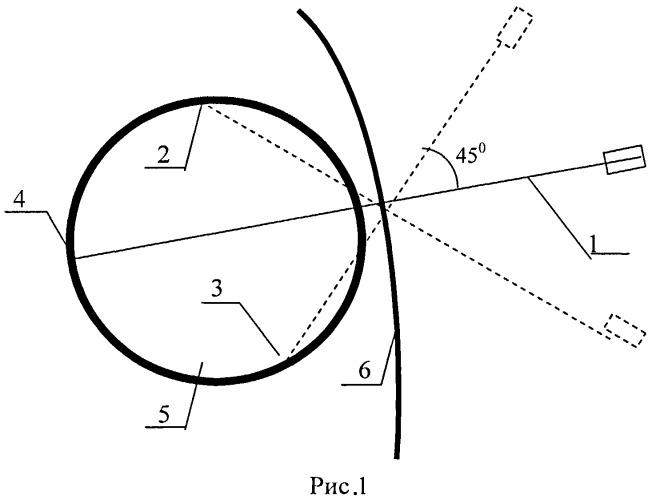 Способ моделирования осложненной стенозом двенадцатиперстной кишки