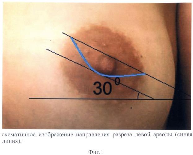 Способ ареолярного оперативного доступа к ткани молочной железы и ретромаммарному пространству