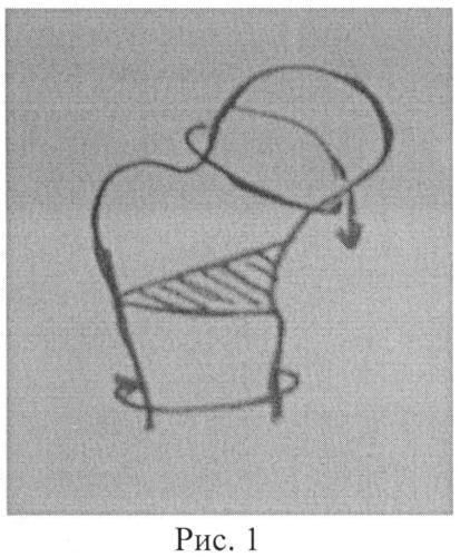 Способ остеотомии таза при лечении дисплазии вертлужной впадины