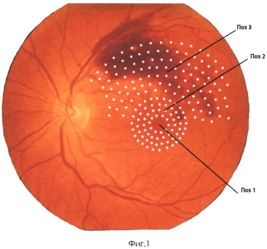 Способ комбинированного лечения ретиноваскулярного макулярного отека