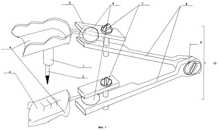 Способ определения и фиксации центрального соотношения челюстей