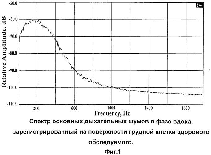 Способ акустической диагностики очаговых образований в легких человека
