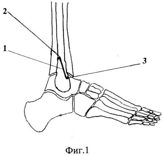 Способ лечения застарелых неправильно сросшихся пронационно-эверсионных переломов дистального отдела костей голени