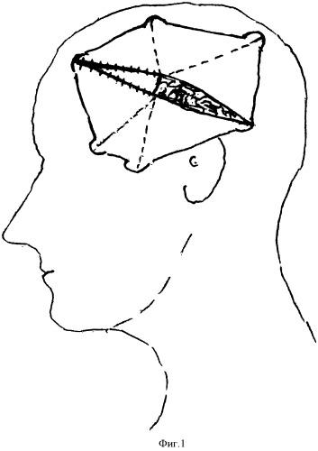 Способ вскрытия и пластики твердой мозговой оболочки