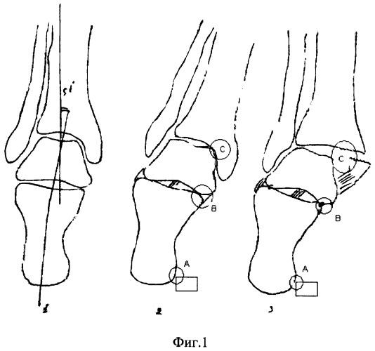 Способ лечения функционального блока таранно-пяточного сустава
