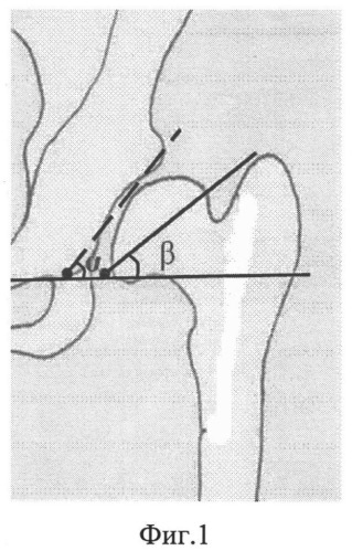 Способ лечения деформаций проксимального отдела бедра
