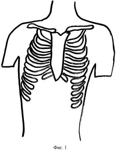Способ лечения больных с обширными дефектами передней грудной стенки